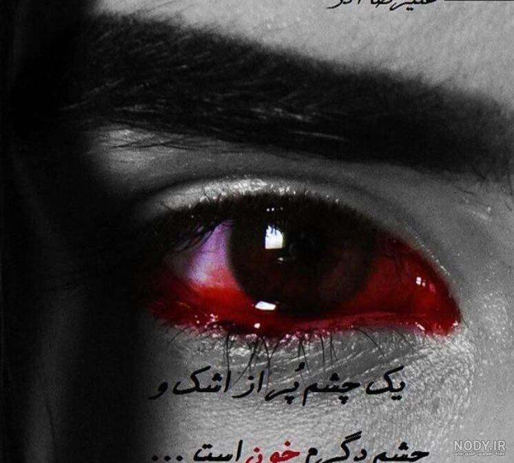عکس چشم خونین برای پروفایل